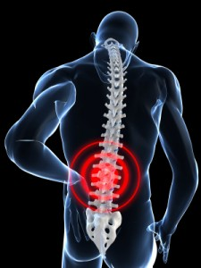 Lower back pain - spine